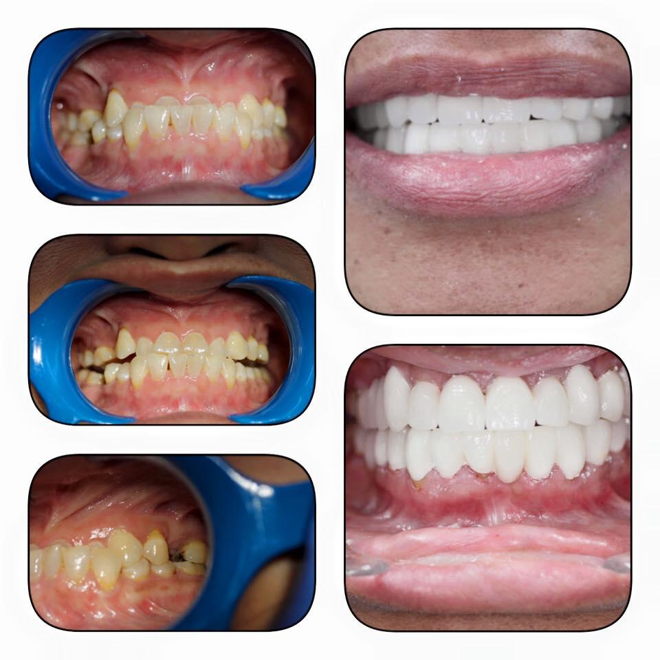 porslinskronor och porslinsfasader. tandläkare trångsund