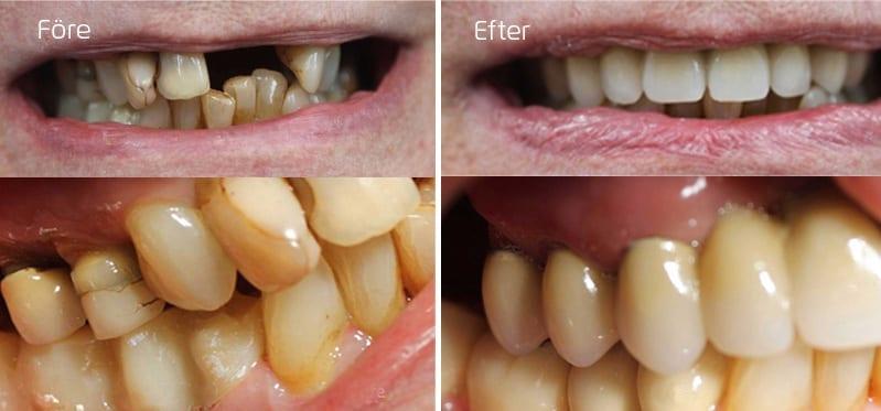 Före och efter full tandbro i överkäke och en delbro i underkäken