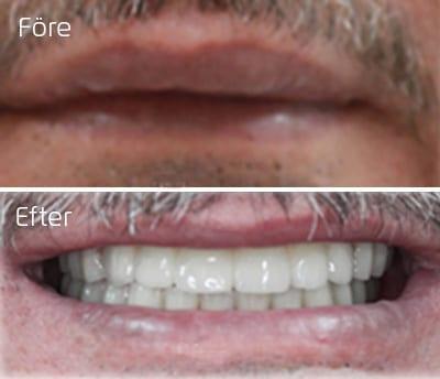 Före och efter implantatbroar i överkäke och underkäke