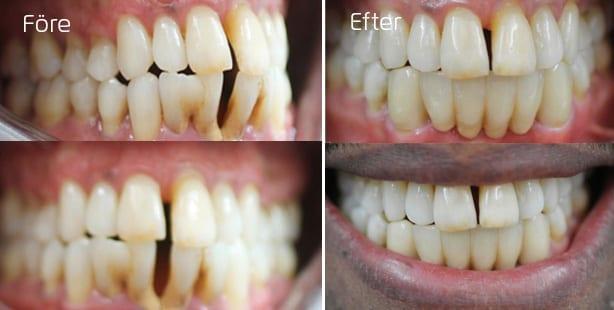 Före och efter trångställning I överkäken- behandling med tandställning Inman Eligner