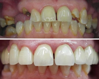 före efter bild på tandrad