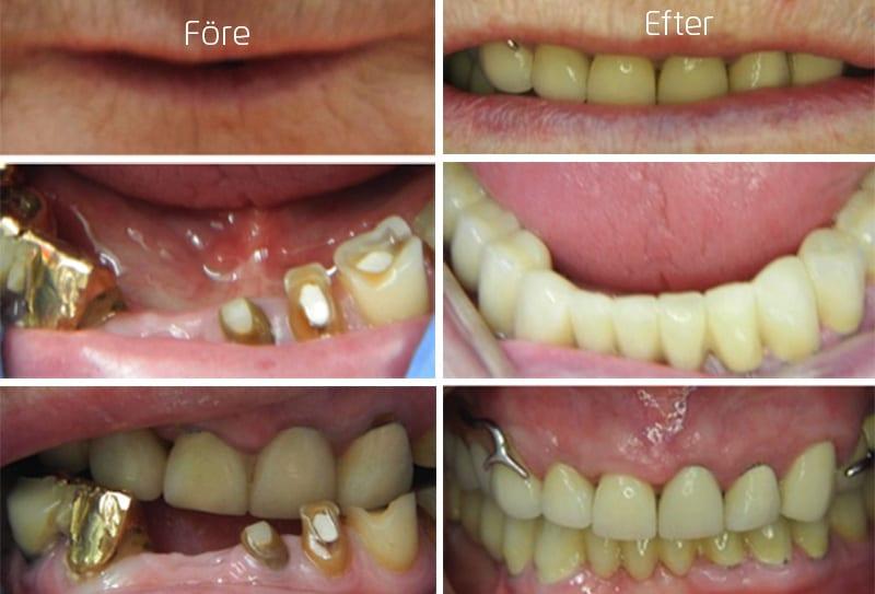 Före och efter bilder hel tandbro i underkäke, tandkronor och tandprotes i överkäke