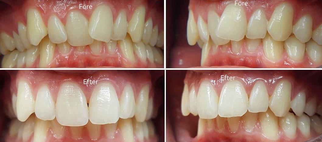 Före och efter tandställning i överkäke