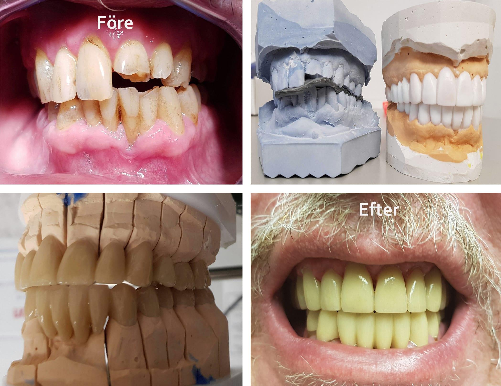 Före och efter bilder på tänder som blivit fixade